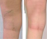 gimnastica tratamentului cu varicoză este posibil să ghemuiți cu picioarele varicoase