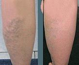 Șosetele genunchi cizme anti cremă inflamatorie WHO analgesic